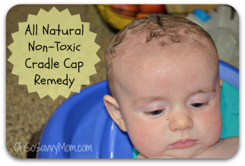 All natural, non-toxic cradle cap remedy
